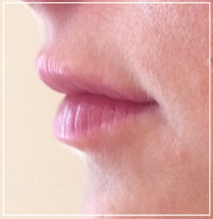 lip-augmentation-after2