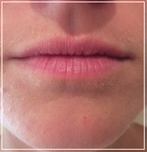 lip-augmentation-before1
