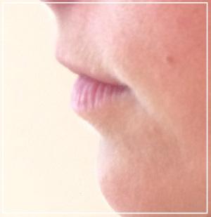 lip-augmentation-before2