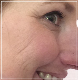 microneedling-befor-afte2r