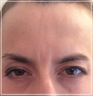 glabella-after2