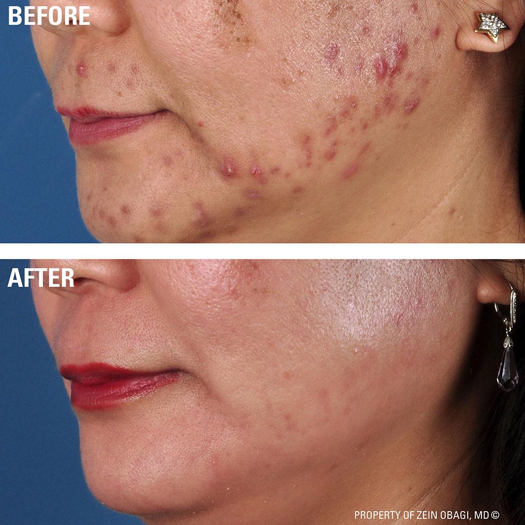 acne-2