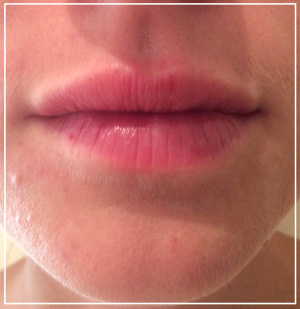 lip-augmentation-after1