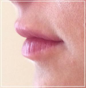 lip-augmentation-after2